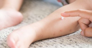 Home Remedies Remove Marks Of Chickenpox