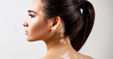 Home Remedies For White Spots