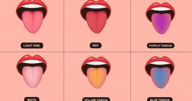 Meaning Of Changes In The Color Of Tongue