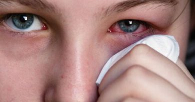 Eyes Allergy And Its Treatment in marathi