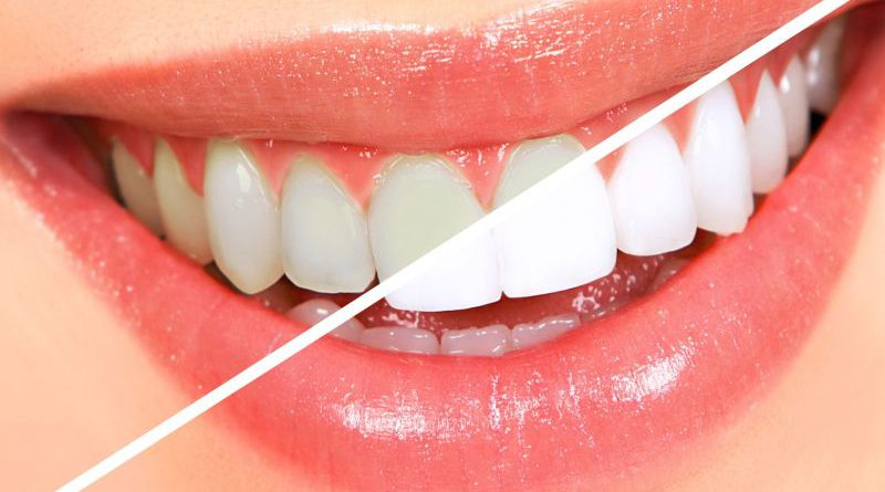 Tips To Whiten Teeth In Marathi